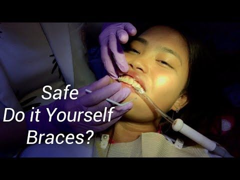 Diy videos diy braces for less misconceptions about ceramic vs diy videos diy braces for less misconceptions about ceramic vs metal braces solutioingenieria Gallery