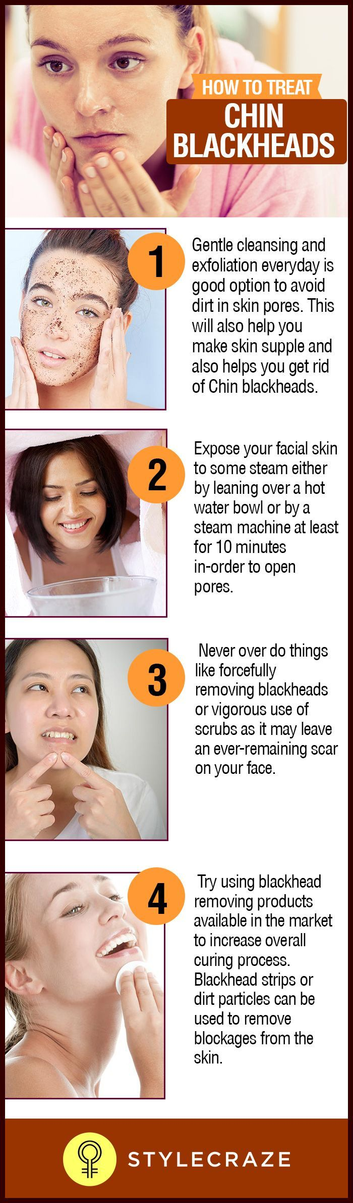 How To Get Rid Of Blackheads On The Chin Fast At Home  Beauty