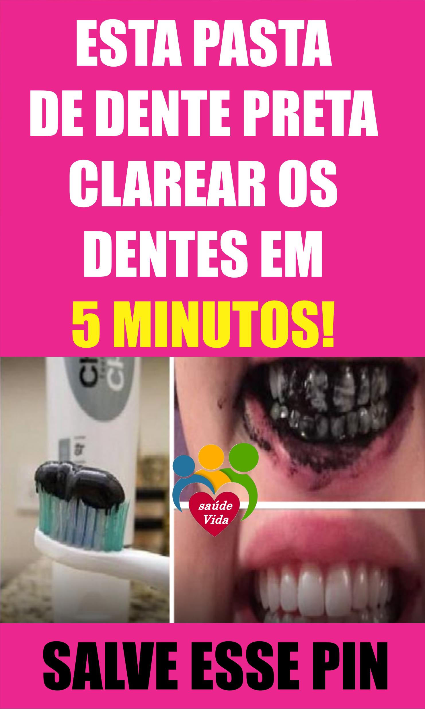 Whitemax Como Clarear Os Dentes Em 5 Minutos Dicas De Beleza