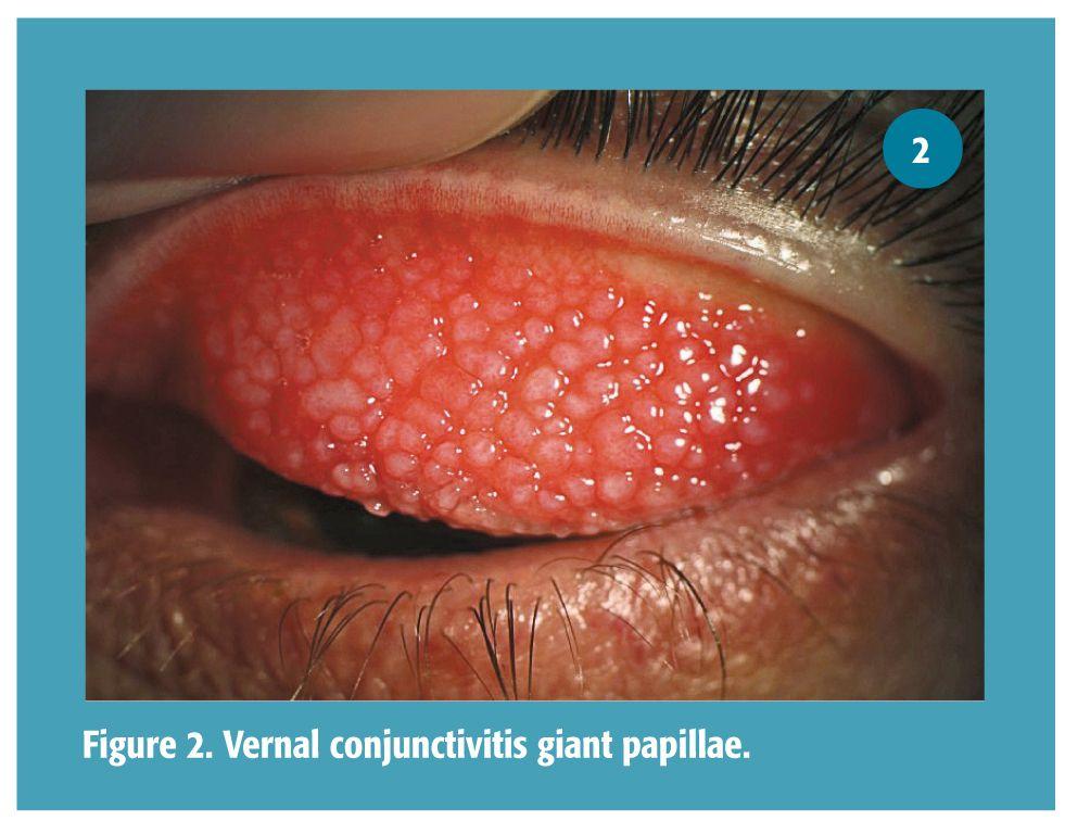 Eyelid Papillae Diagram - Wiring Diagram •