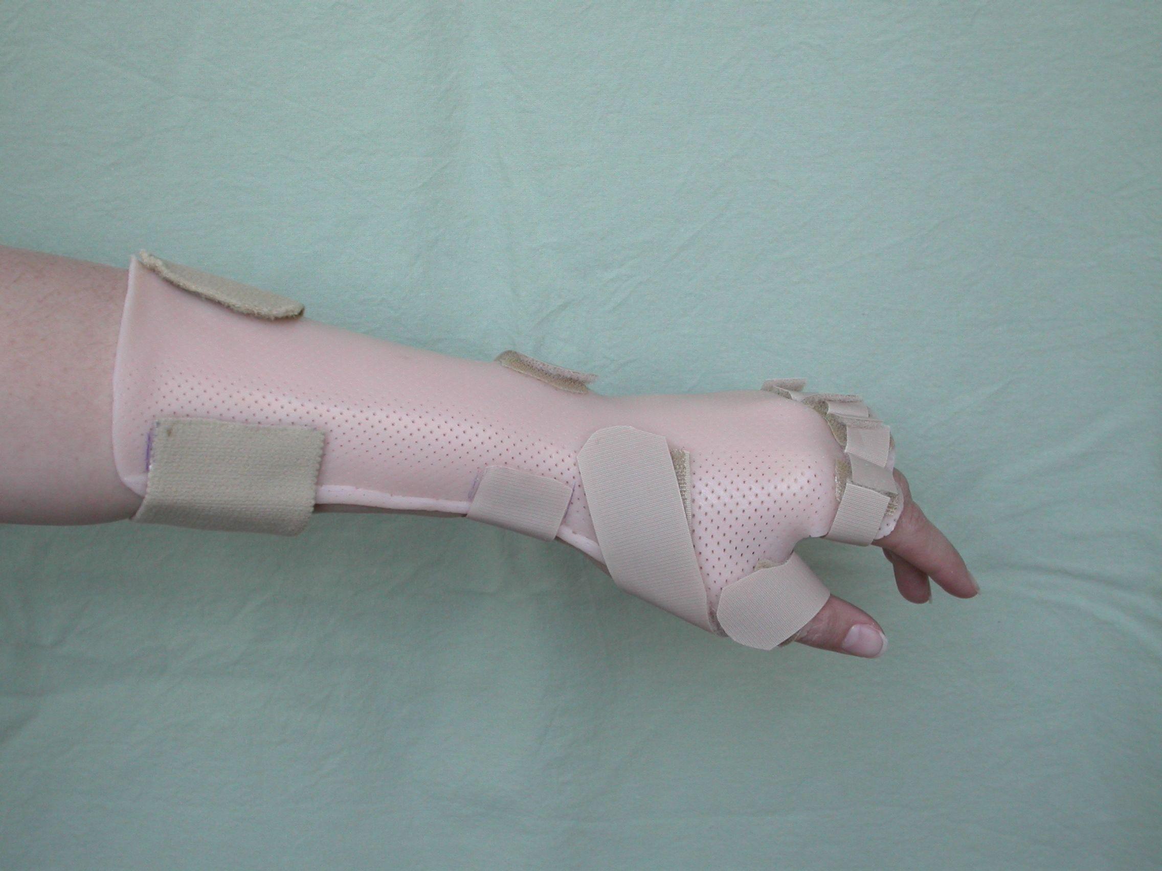 Splint for thumb radial nerve surgery
