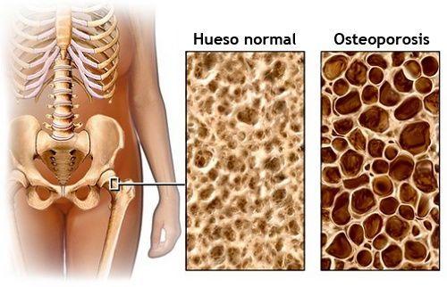 28+ Como combatir la osteoporosis en la columna information