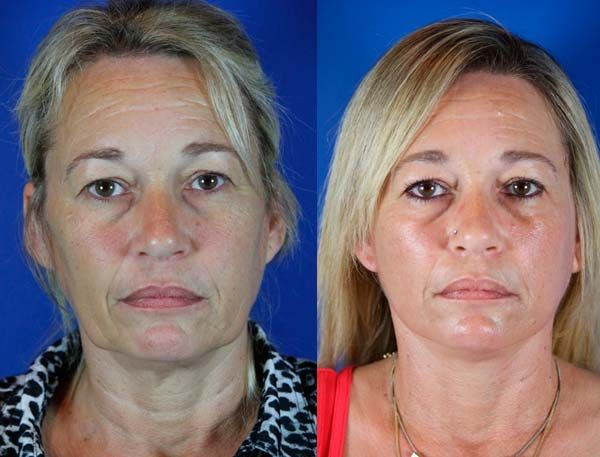 Wanda 50 before and after faceliftneck lift including wanda 50 before and after faceliftneck lift including liposuction of the jowls ccuart Image collections