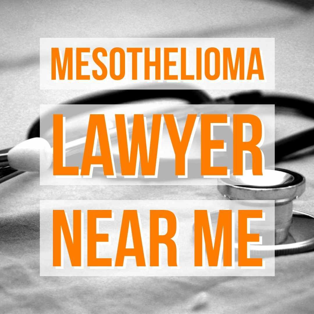 10 Things To Remember Before Hiring Mesothelioma Lawyers In 2020 Mesothelioma Attorneys Lawyer