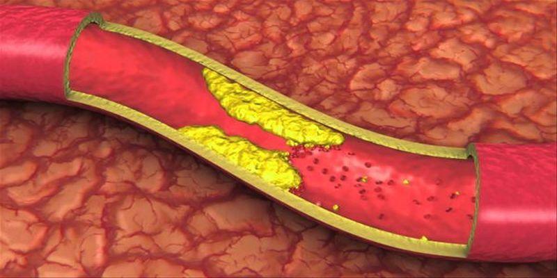 Pozbądź się zatkanych tętnic, wysokiego ciśnienia krwi i złego cholesterolu - Zdrowe poradniki