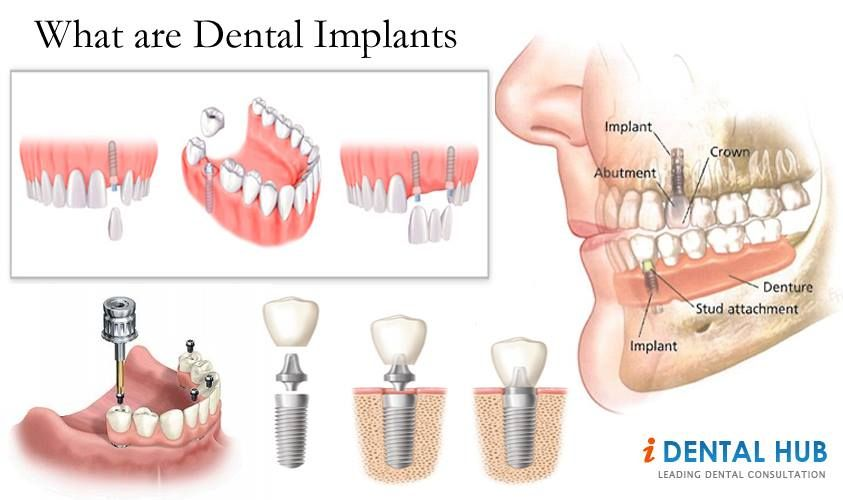 Dental Implant Is A New Revolution In Dentistry It Is A Prosthetic Device Of Alloplastic Material Implanted In The Oral Tissue Dental Implants Dental Implants