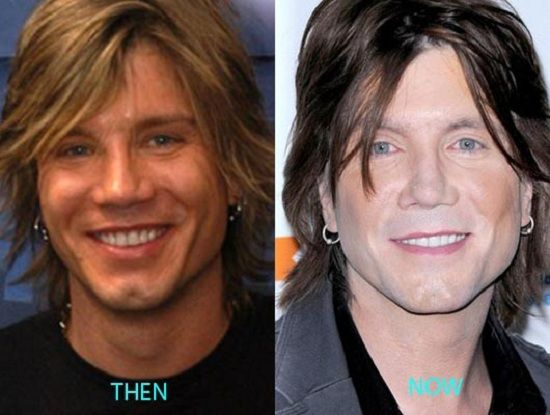 John Rzeznik Plastic Surgery Is It Only The Effect Of Make Up