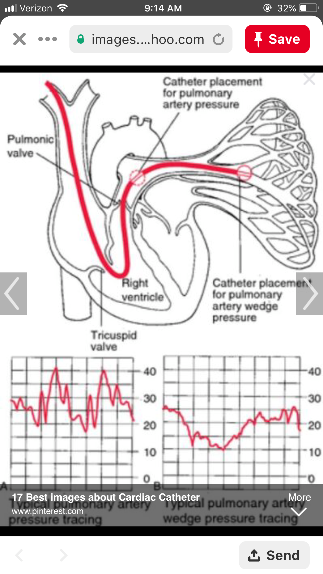 Pin by Angela Cheadle on Cardiac (With images) Critical