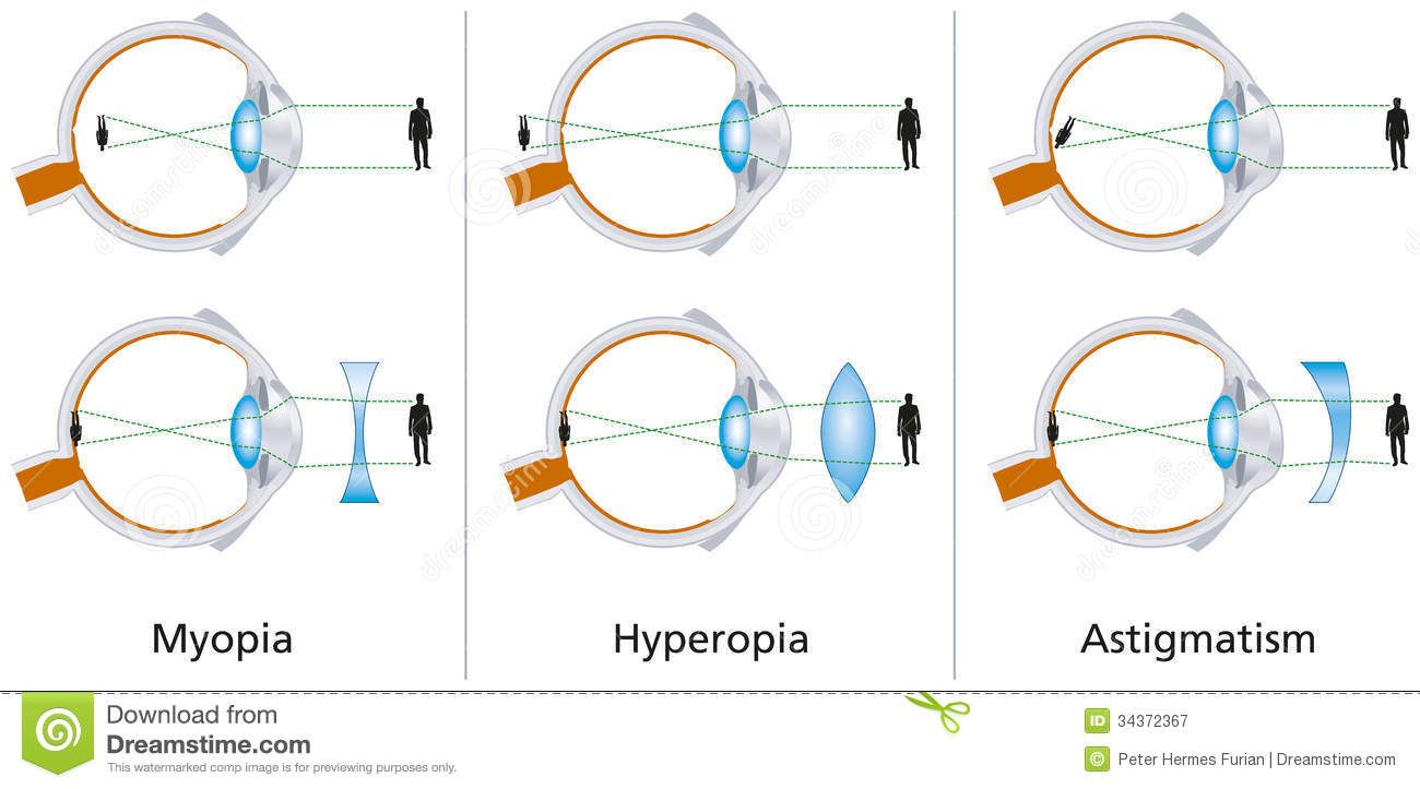 Vision Defects Myopia Hyperopia And Astigmatism Astigmatism Lasik Eye Facts