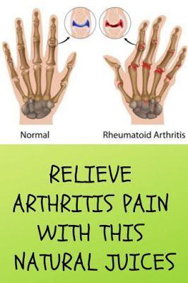 Rheumatoid arthritis is a debilitating disease that ...