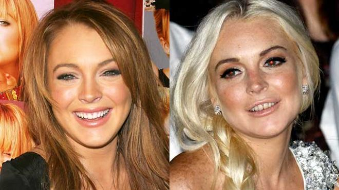 Meth before and after celebrity nose