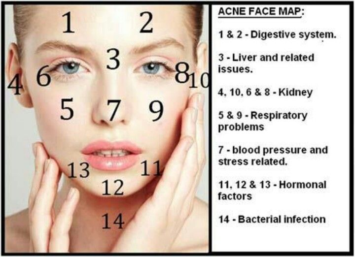 Acne Face Map Face Mapping What Your Body May Be Telling You By