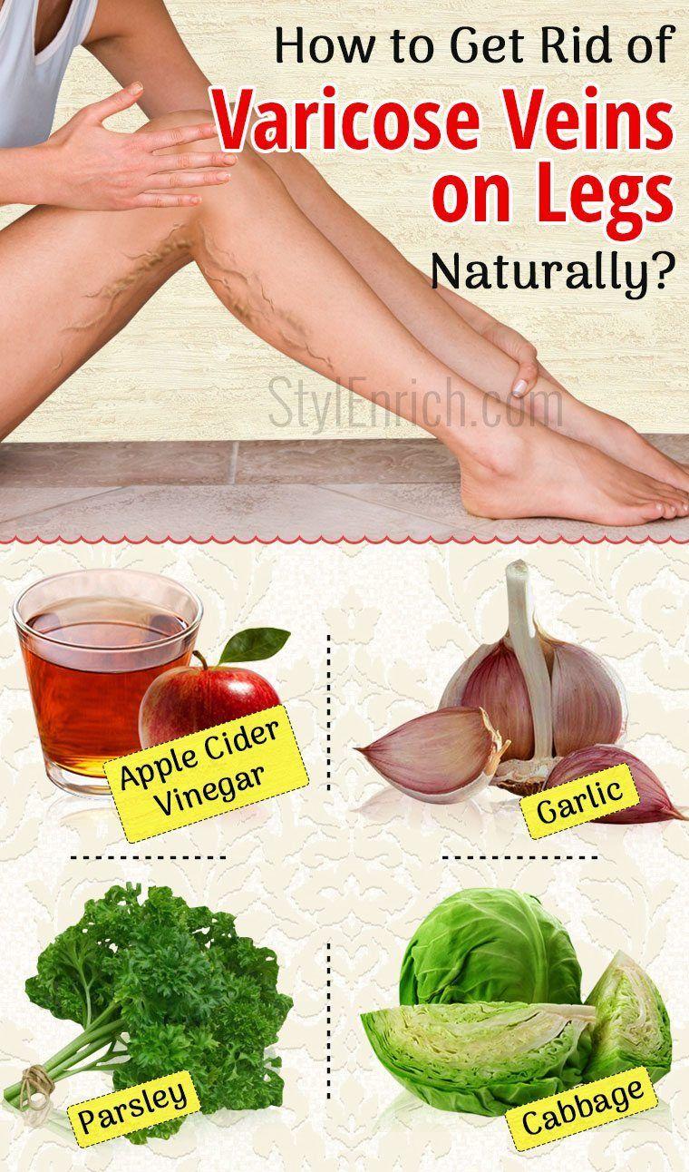 ee6934e30dec81118c0e191547756c55 - How To Get Rid Of Veins On Legs At Home