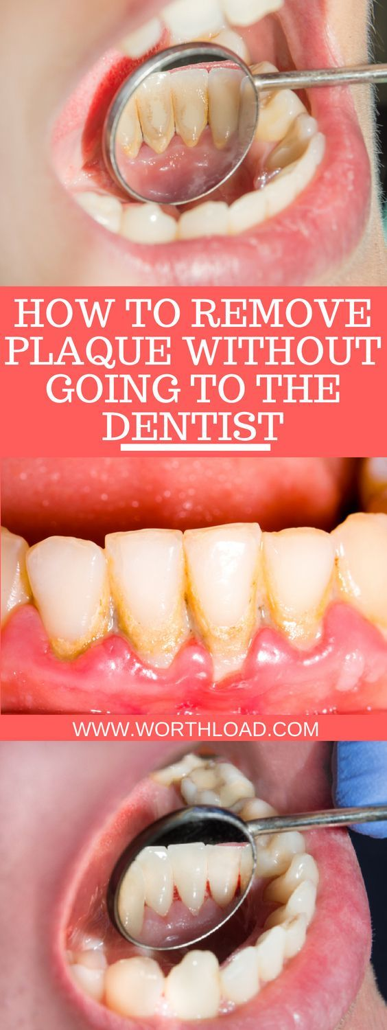 How To Remove Plaque Without Going To The Dentist Plaque