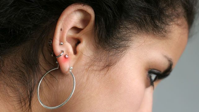 How To Treat An Infected Ear Piercing Infected Ear Piercing Ear