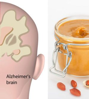Here's How You Can Use Peanut Butter To Diagnose Alzheimer's Disease!  #lifehacks  #fitness