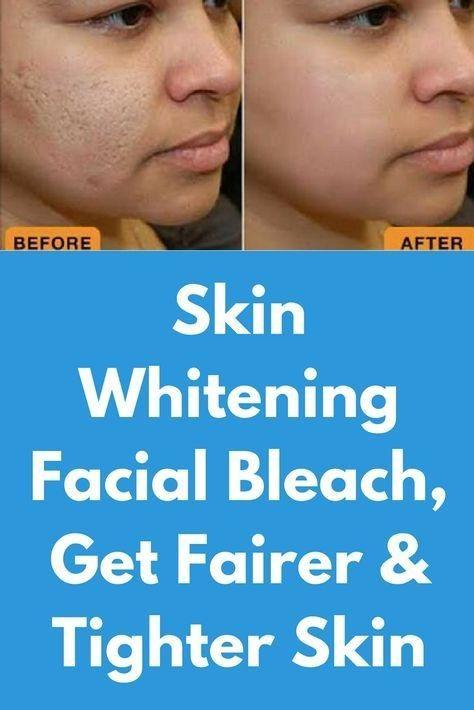 15 minuti candeggina sbiancante per la pelle, ottenere una pelle più chiara e p…