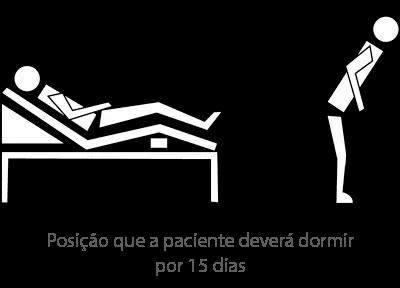 exemplo da posicao que a paciente devera dormir nos quinze primeiros dias apos a cirurgia paciente dormindo cirurgia