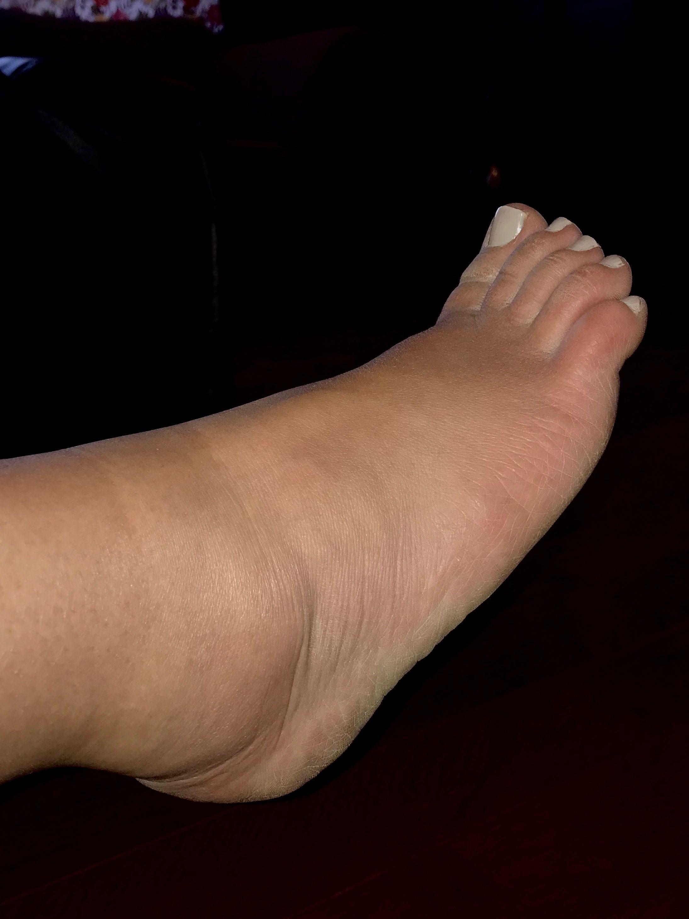 Rheumatoid Arthritis, swelling, ankles.