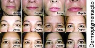 site que corrige a maquiagem - Pesquisa Google