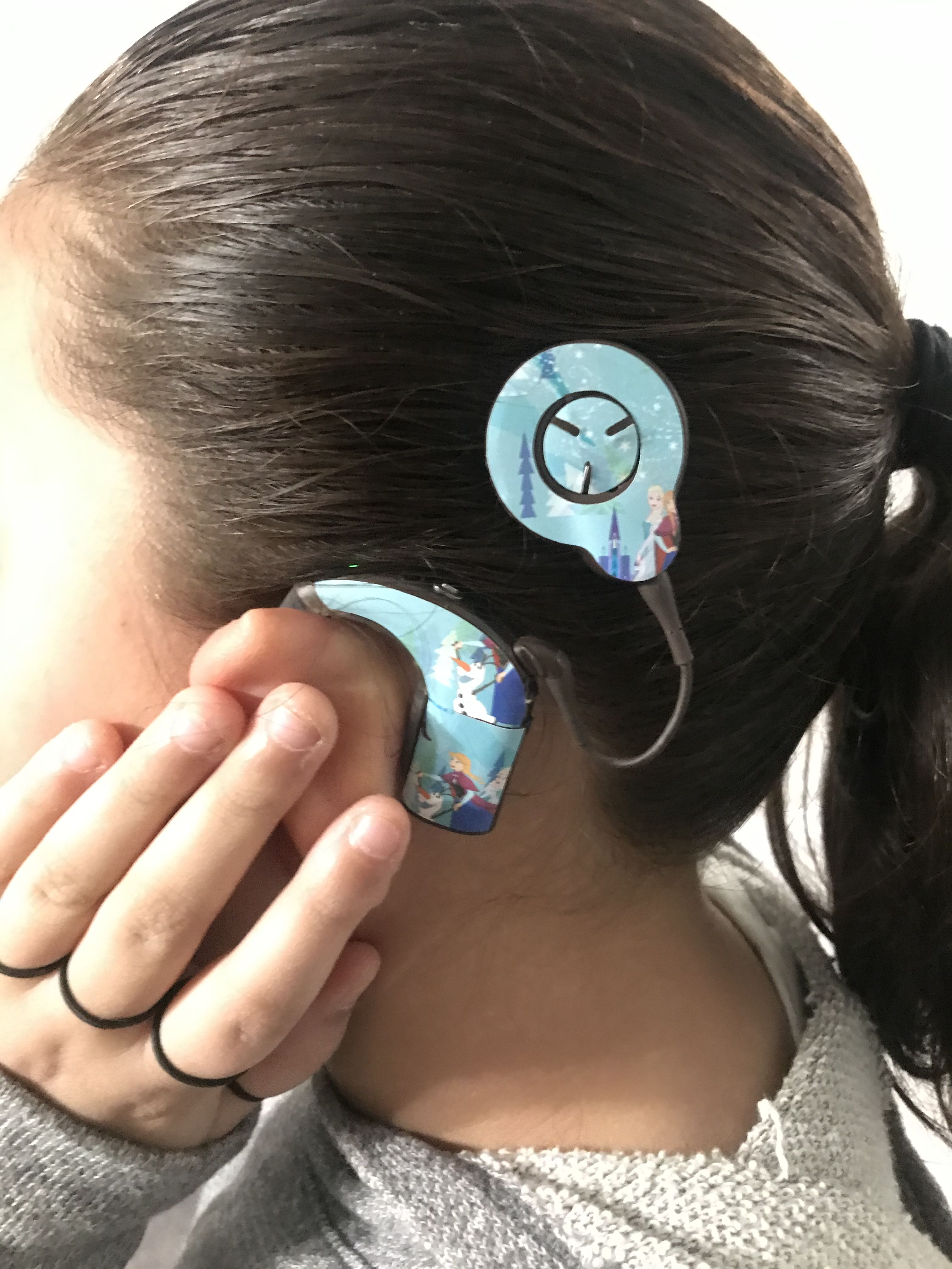 Frozen Stickers for Cochlear Implants