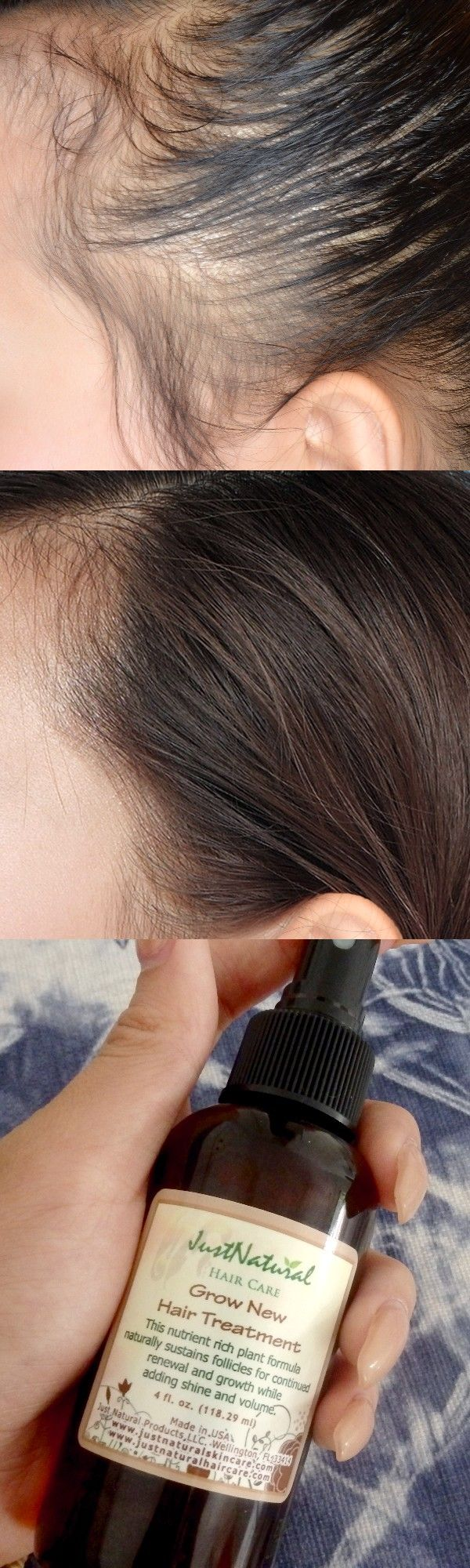 I Never Thought A Natural Product Was The Answer To My Hair Loss My Doctor Told Me I Would Most Likely Never Be Hair Again Hair Treatment Natural Hair Styles