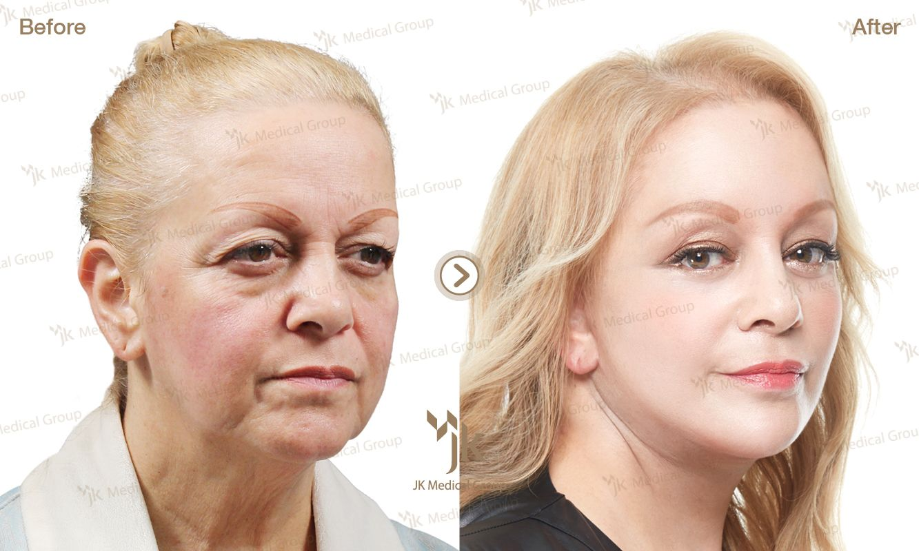 korea plastic surgery _anti-aging before&after _jk plastic surgery