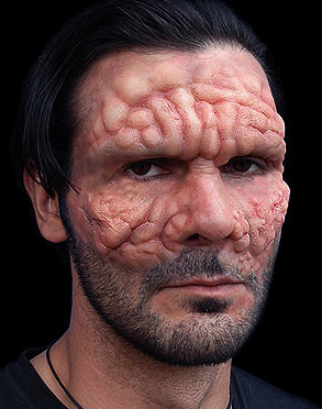 Leprosy outbreak in Florida Special effects makeup