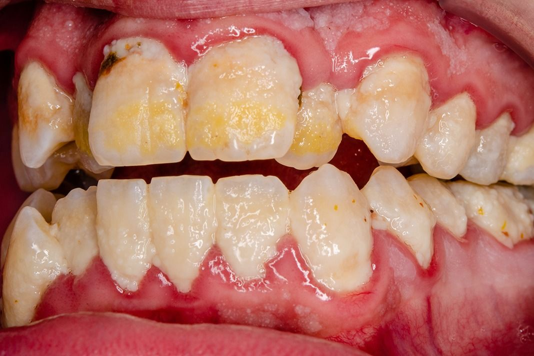 Cancer bucal gingivitis Cancer bucal como prevenirlo, Mult mai mult decât documente.
