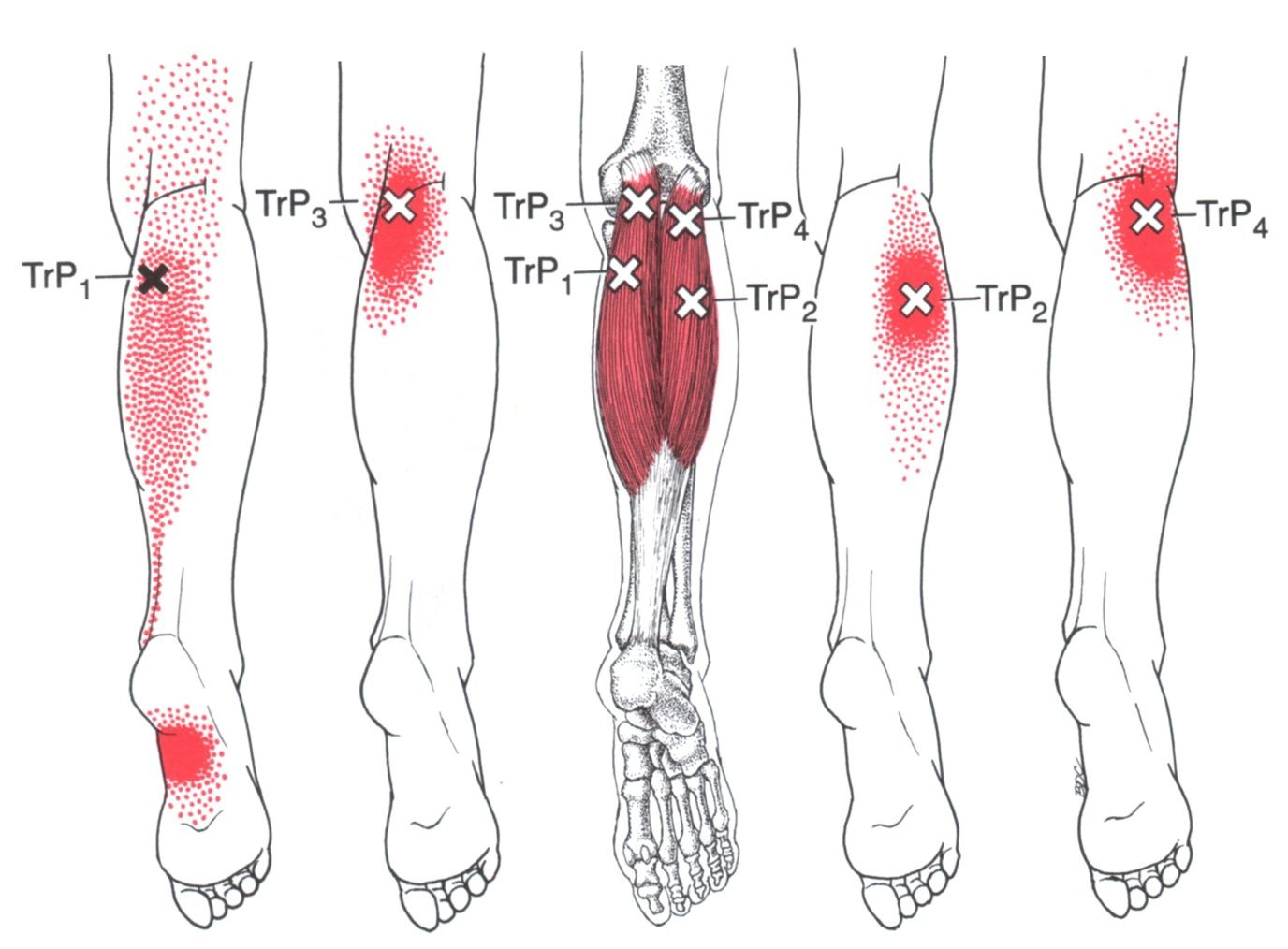 Zweiköpfiger Wadenmuskel | The Trigger Point & Referred Pain Guide ...
