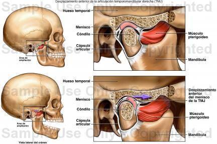 articulacion temporomandibular | TCG. Unidad 4. Naiara | Pinterest ...