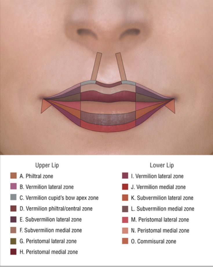 Pin by MessiahMews on Natural Luscious Lips | Lip injections, Botox