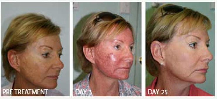 Blue Light Therapy Results Picture Blue Light Therapy