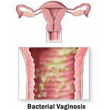 Cortes de pelo vaginal