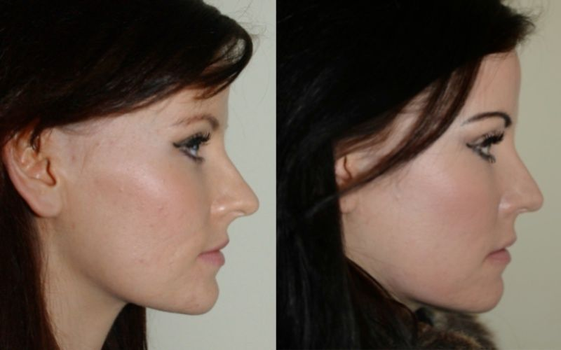 Image result for people with pointy nose who have had