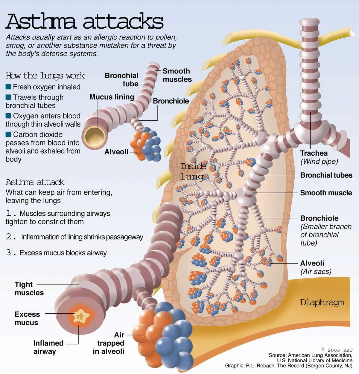Breathe easy? Good and bad news about asthma Asthma