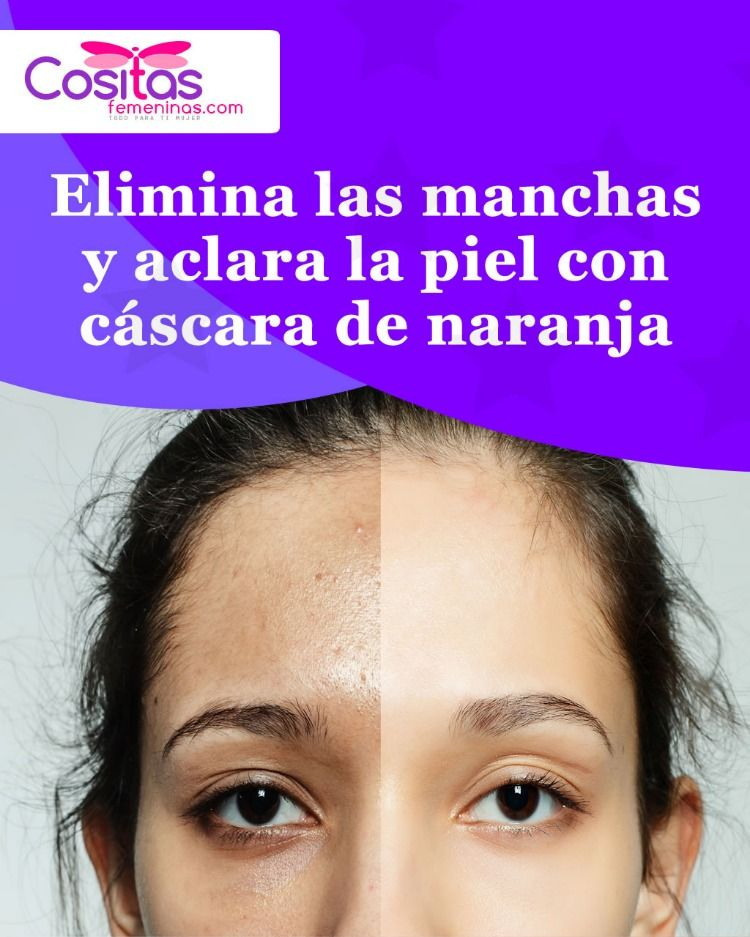 Elimina Las Manchas Y Aclara La Piel Con Cáscara De Naranja Beauty Skin Face Skin