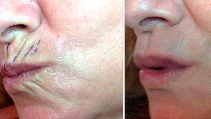 Como eliminar las arrugas de la boca y barbilla naturalmente   dieta ...