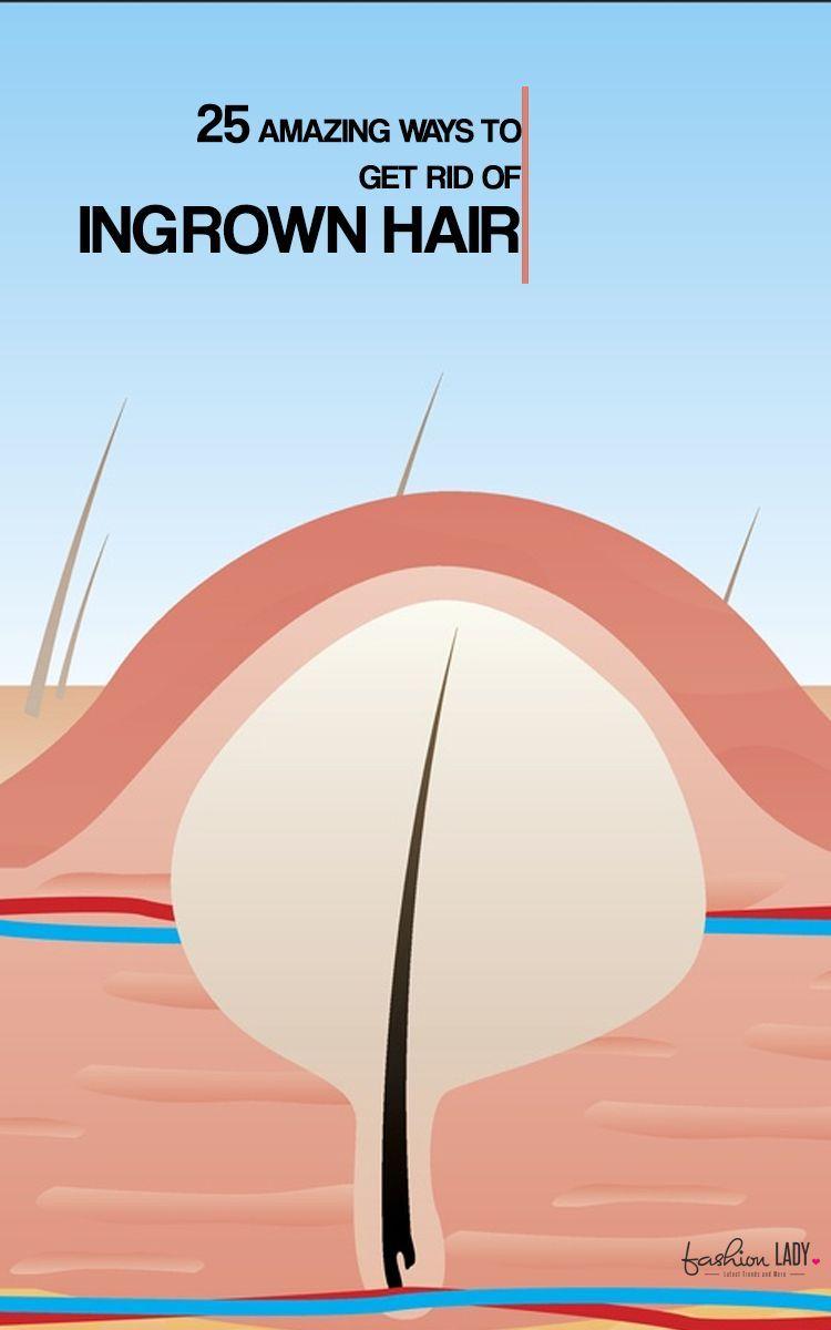 25 amazing ways to get rid of ingrown hair ingrown hair ingrown 25 amazing ways to get rid of ingrown hair pooptronica Choice Image