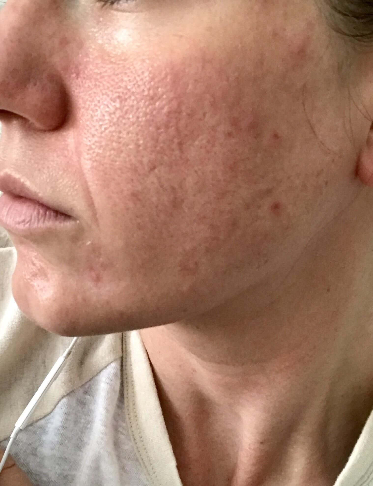 Skin Concerns] Is This A Tretinoin Purge?   Hair, Skin, and