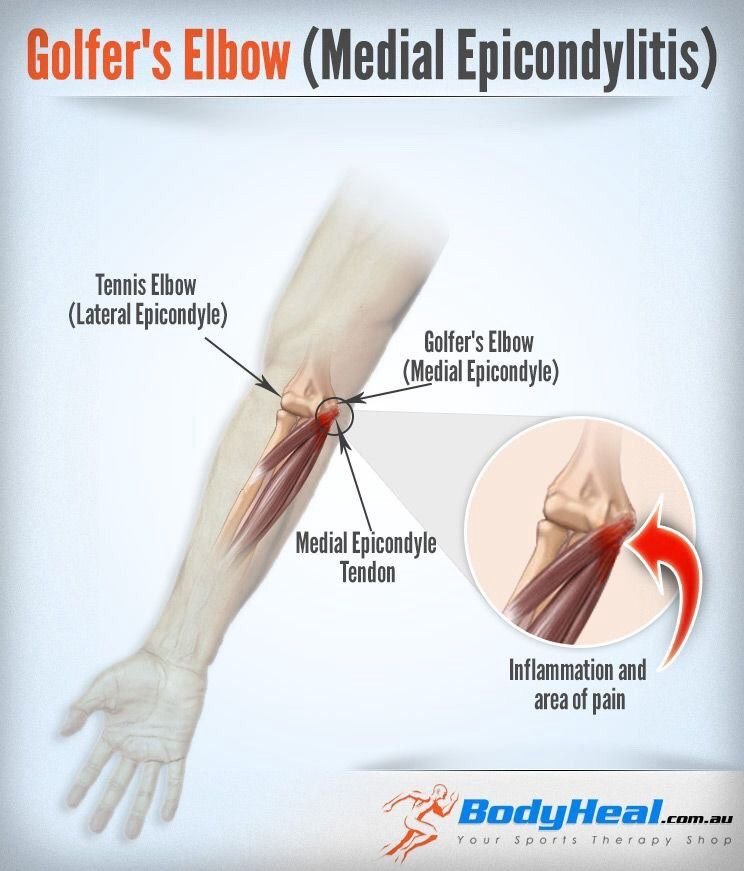 A Physical Therapist Take On Golfer S Elbow Golfers Elbow Tennis Elbow Golfers Elbow Treatment