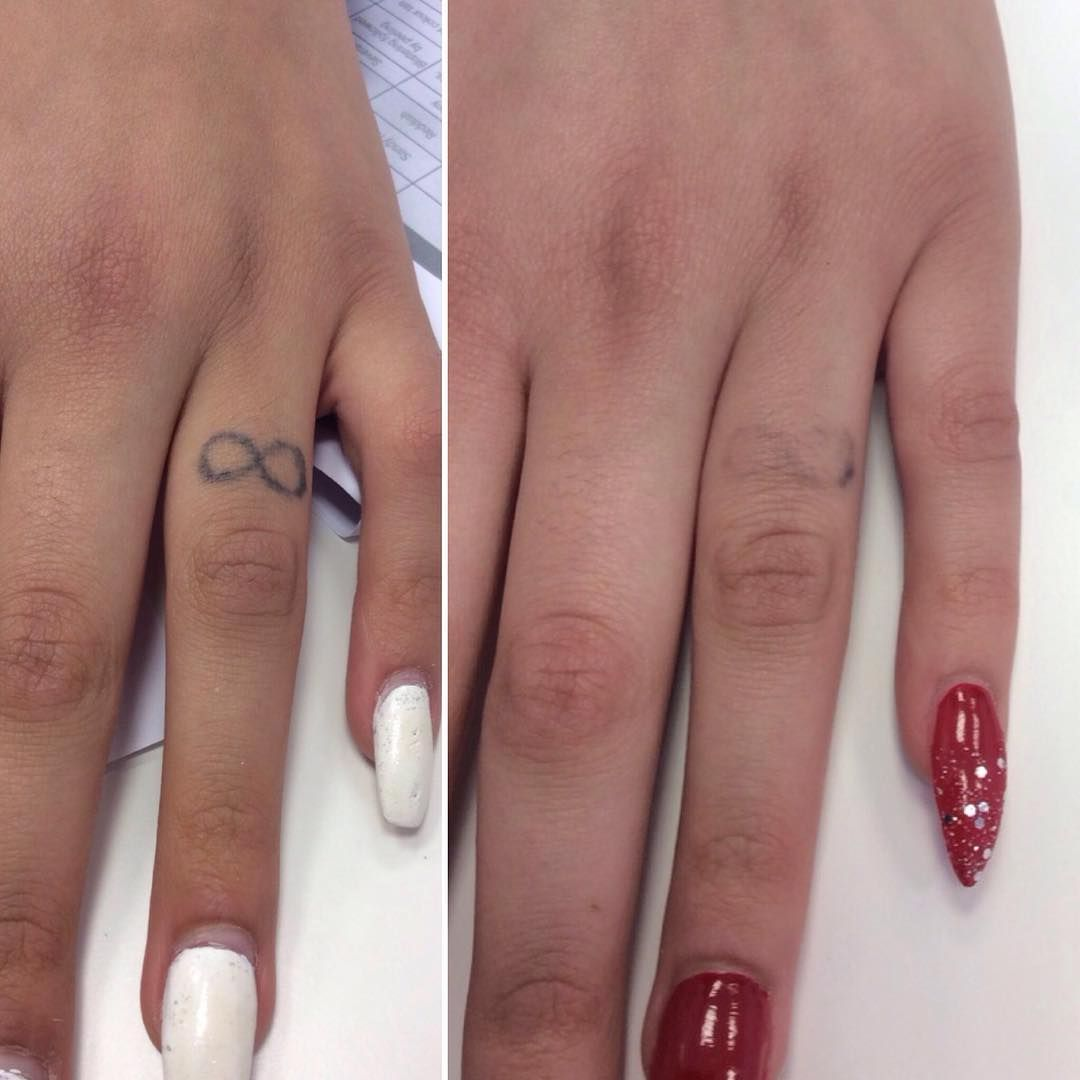 Laser Tattoo Removal With The Picosure Laser Laser Tattoo Tattoo Removal Ring Finger Tattoos