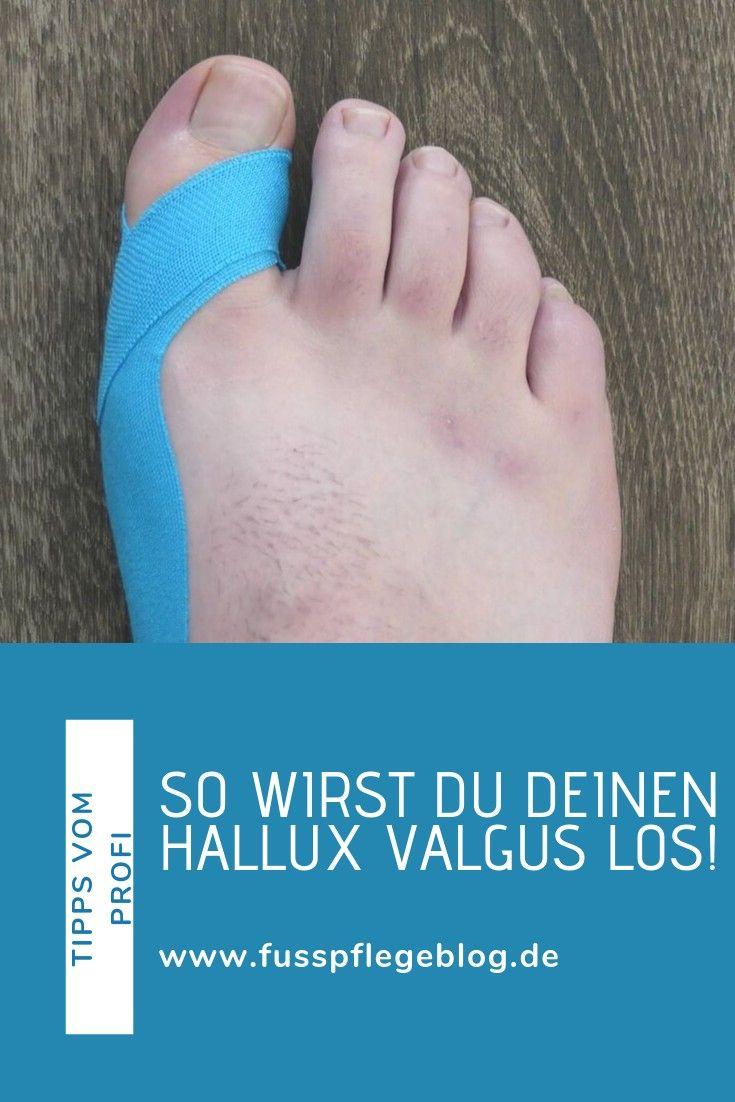 Photo of Hallux Valgus tapen | Fusspflegeblog