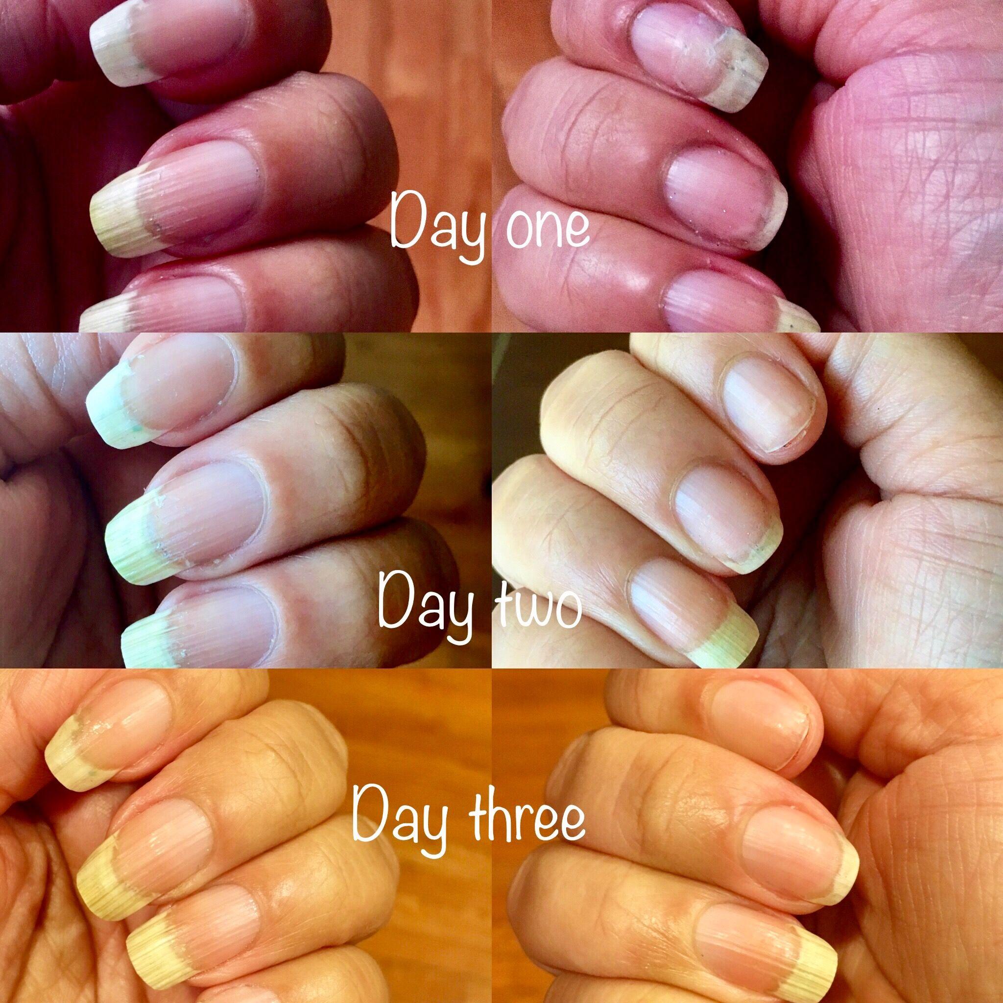 My Bliss Kiss: Three Day Nail Oil Challenge | Nail oil