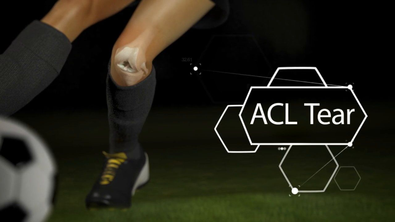 Acl injury the mechanics of a torn acl acl tear acl