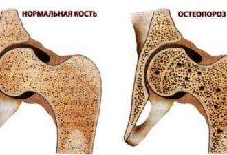 Пилатес артрит