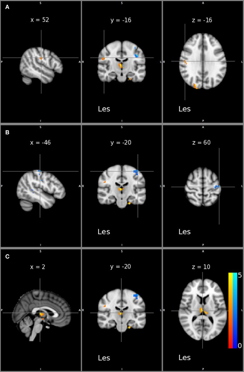 Article Neural Plasticity In Moderate To Severe Chronic Stroke