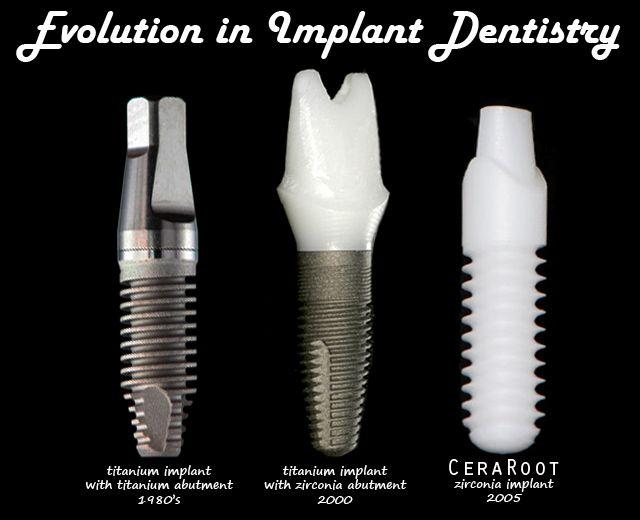 Zirconia Vs Titanium Ceraroot Zirconia Dental Implant
