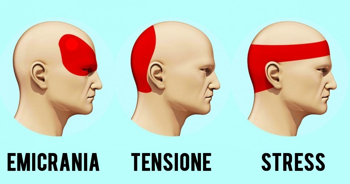 Come liberarsi del mal di testa senza medicine in 5 minuti..