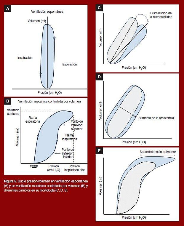 Figura 5 bucle presi n volumen en ventilaci n espont nea - Ventilacion mecanica controlada ...